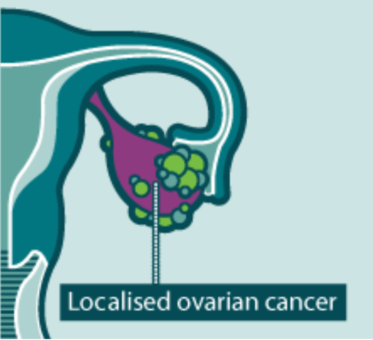 Bee venom for ovarian cancer